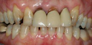 Full Mouth Rehabs - Whitehouse Dental