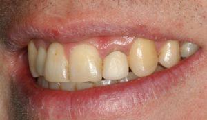Single Teeth - Whitehouse Dental