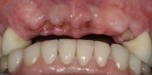 Implant Cases - Whitehouse Dental