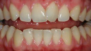 Six Month Smile - Whitehouse Dental
