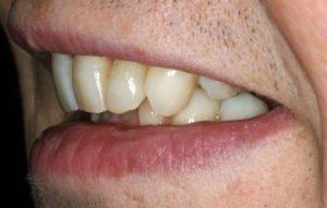 Invisalign Aligner Cases - Whitehouse Dental