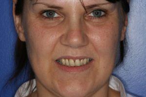 Extreme Makeover TV Show - Whitehouse Dental