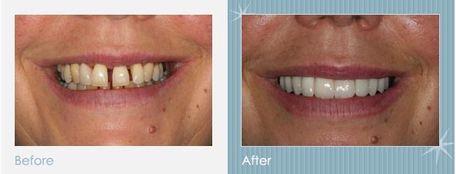 Smile Makeover Dentist in Richmond