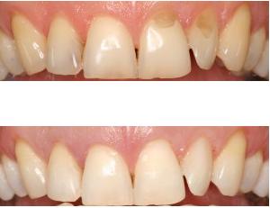 Teeth Whitening Dentists Richmond - White House Dental