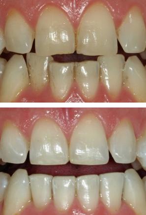 Inman-Aligner - Whitehouse Dental