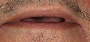 Before Implant Cases - Whitehouse Dental