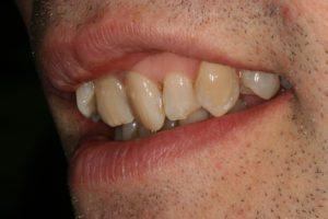 Before 6 Month Smile - Whitehouse Dental