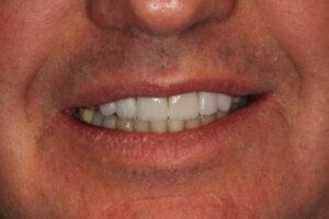 Smile After Design - Whitehouse Dental