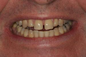 Smile Design - Whitehouse Dental