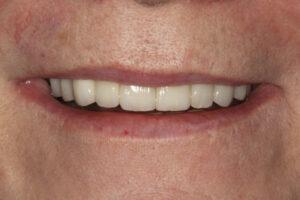 Blended veneers for a natural result - Whitehouse Dental