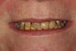Yellow crooked teeth - Whitehouse Dental