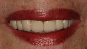 Transformed using our smile design expertise