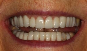 Transformed smile using the finest all ceramic crowns