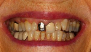 Worn yellow teeth - Whitehouse Dental