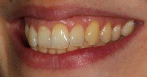 Before Inman Aligner Cases - Whitehouse Dental