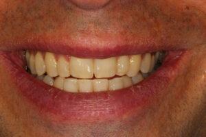 After 6 Month Smile - Whitehouse Dental