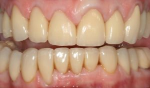 Our years of expertise to transform the teeth using veneers