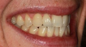 After Single Tooth Treatment - Whitehouse Dental