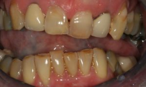 Worn Teeth and a really Crooked smile - Whitehouse Dental