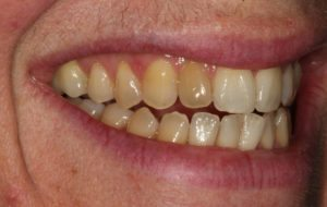 Before Single Tooth Procedure - Whitehouse Dental