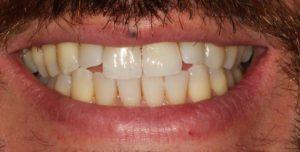 Before - Whitehouse Dental