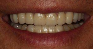 Upper and lower veneers - Whitehouse Dental