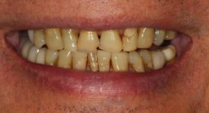 Yellow Chipped teeth - Whitehouse Dental