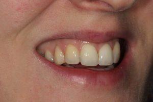 After - Whitehouse Dental