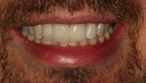 After Implant Cases - Whitehouse Dental