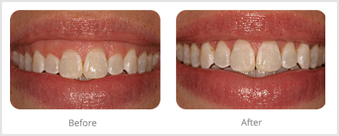 Cosmetic Gum Restoration - Whitehouse Dental