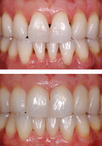 Before vs After Bioclear Procedure - Whitehouse Dental
