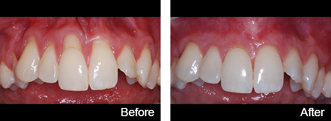 Tunnelling To Reduce Gum Retreat - Whitehouse Dental