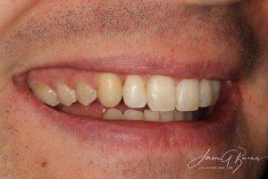 After Invisalign - Whitehouse Dental