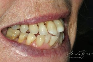 Before Invisalign - Whitehouse Dental