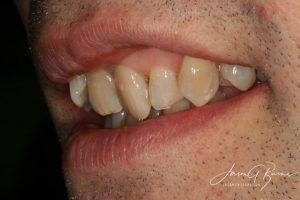 Teeth straightening richmond
