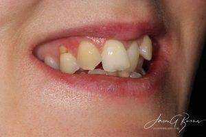 kew teeth straightening