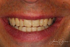 teeth straightening kew