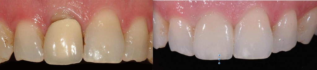 A Cerec Crown in 1 hour!