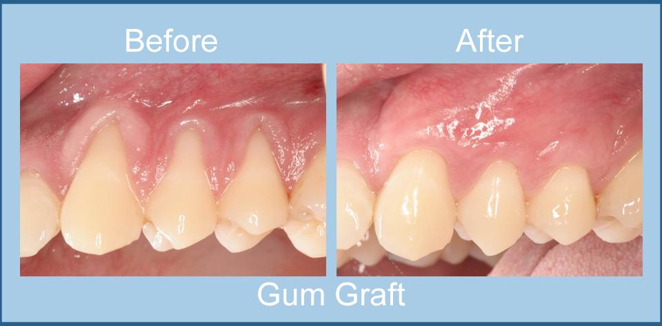 gum-graft
